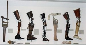 Types of Prosthetic Leg