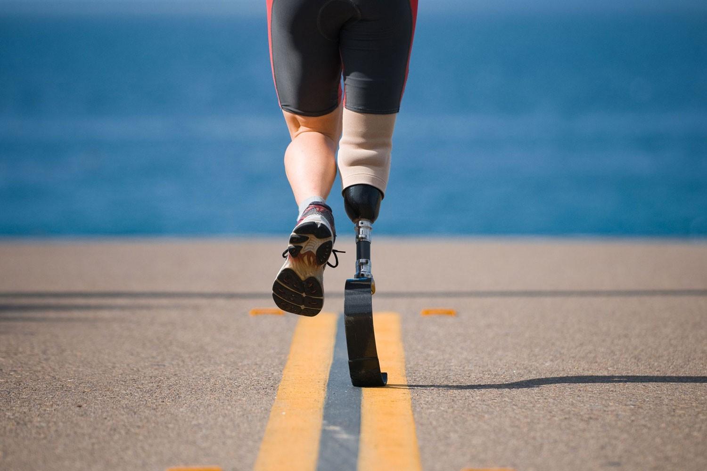 prosthetics leg