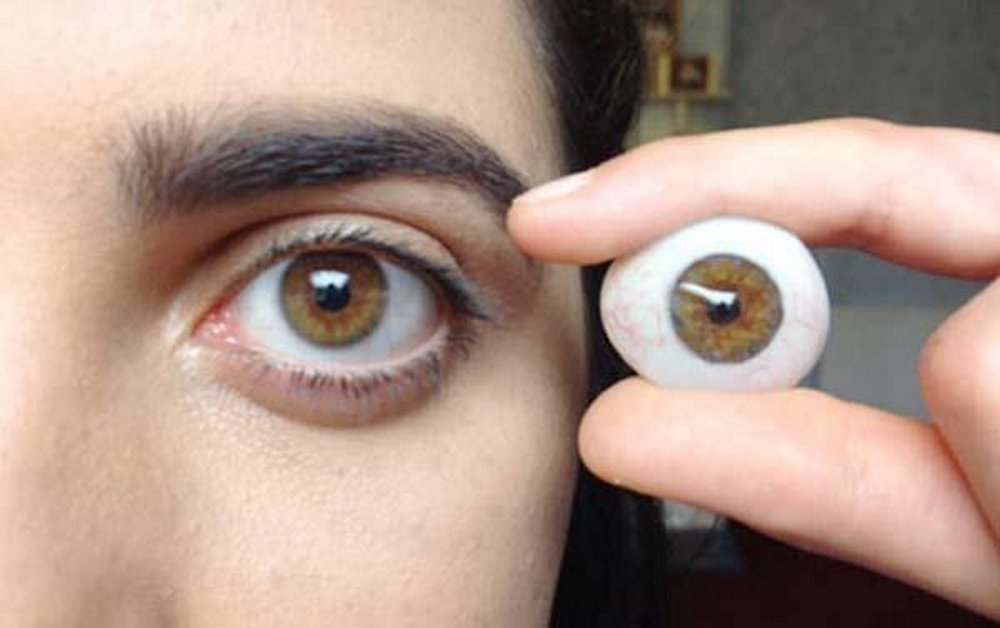 The Cost of Prosthetic Eyes