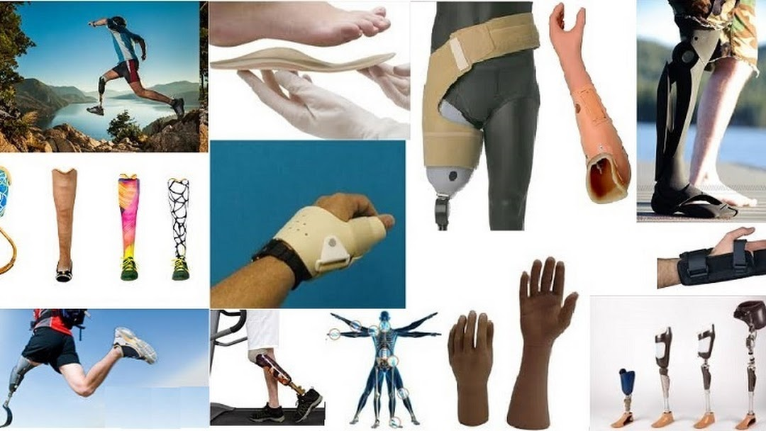 What is Prosthesis